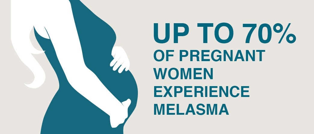 melasma during pregnancy