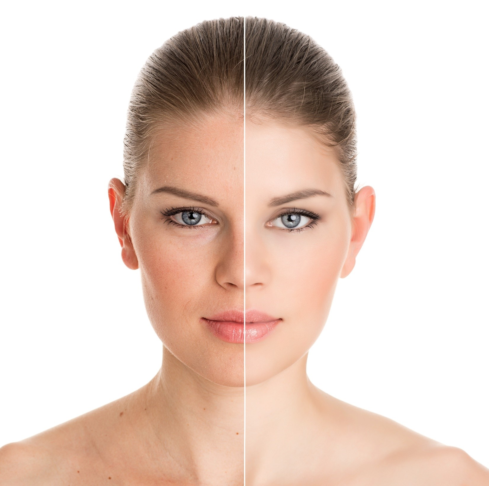 Dry, Blotchy Or Oily Skin? Try These Tips