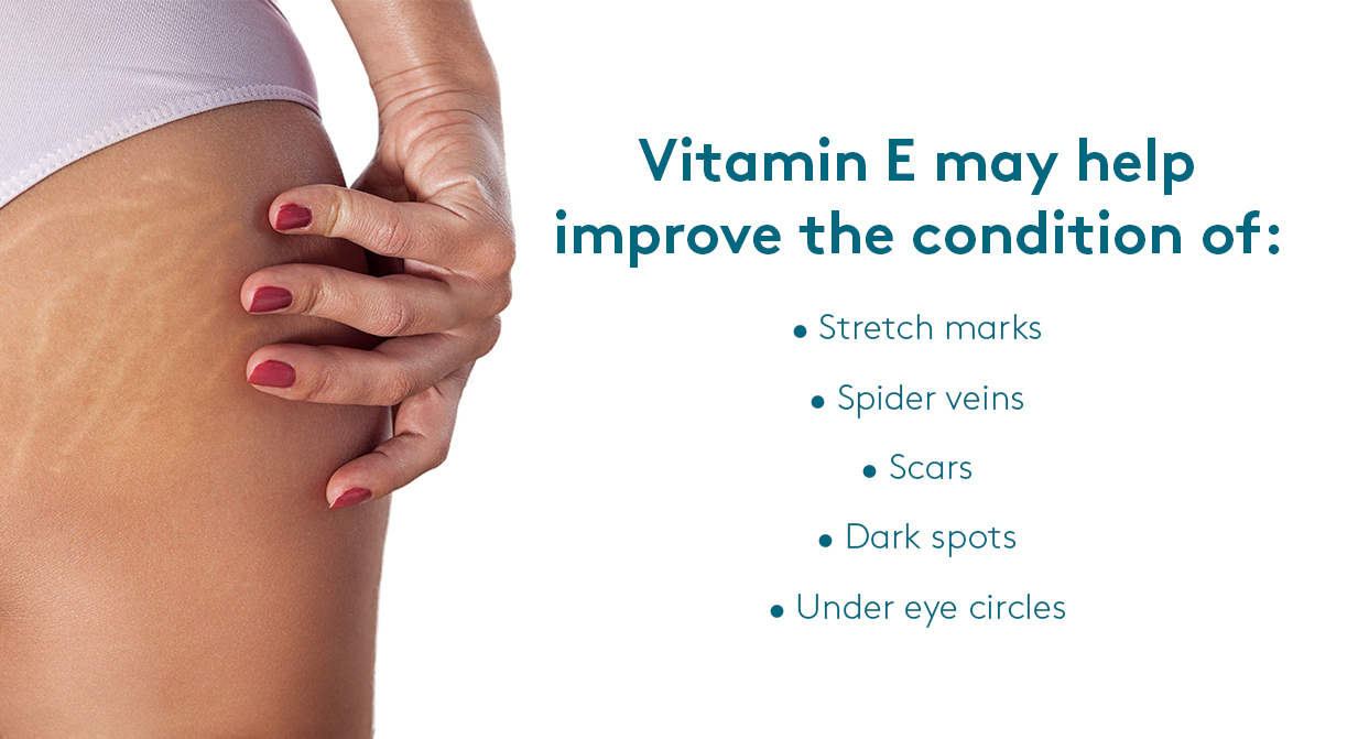 Skin conditions improved by vitamins for healthy skin
