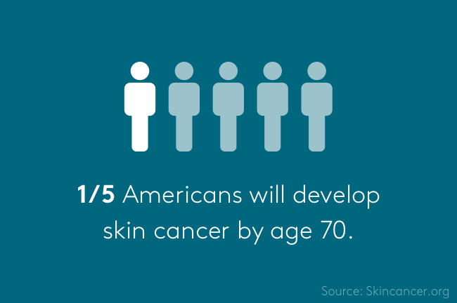 Americans with skin cancer by age 70