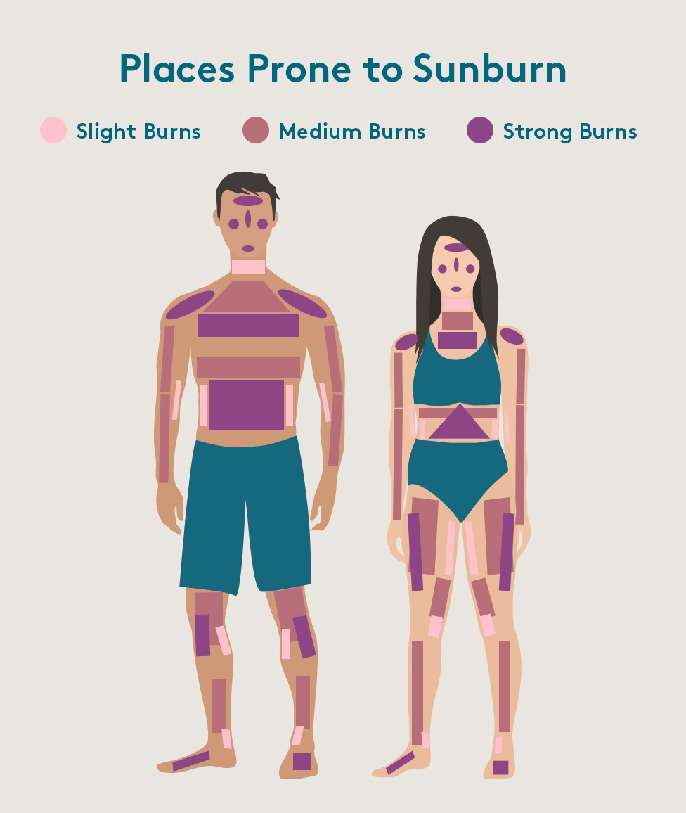 Body parts prone to sunburn without sunscreen