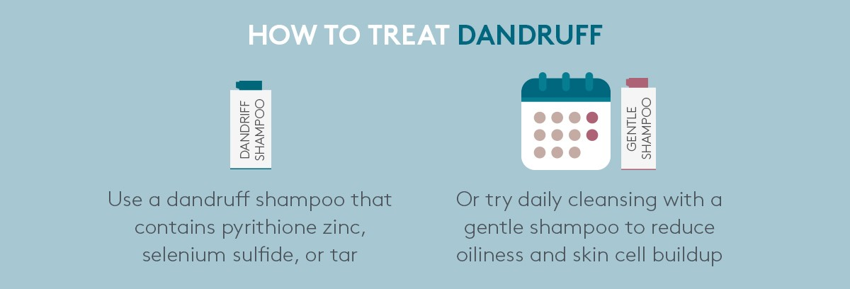 how to treat dandruff in winter