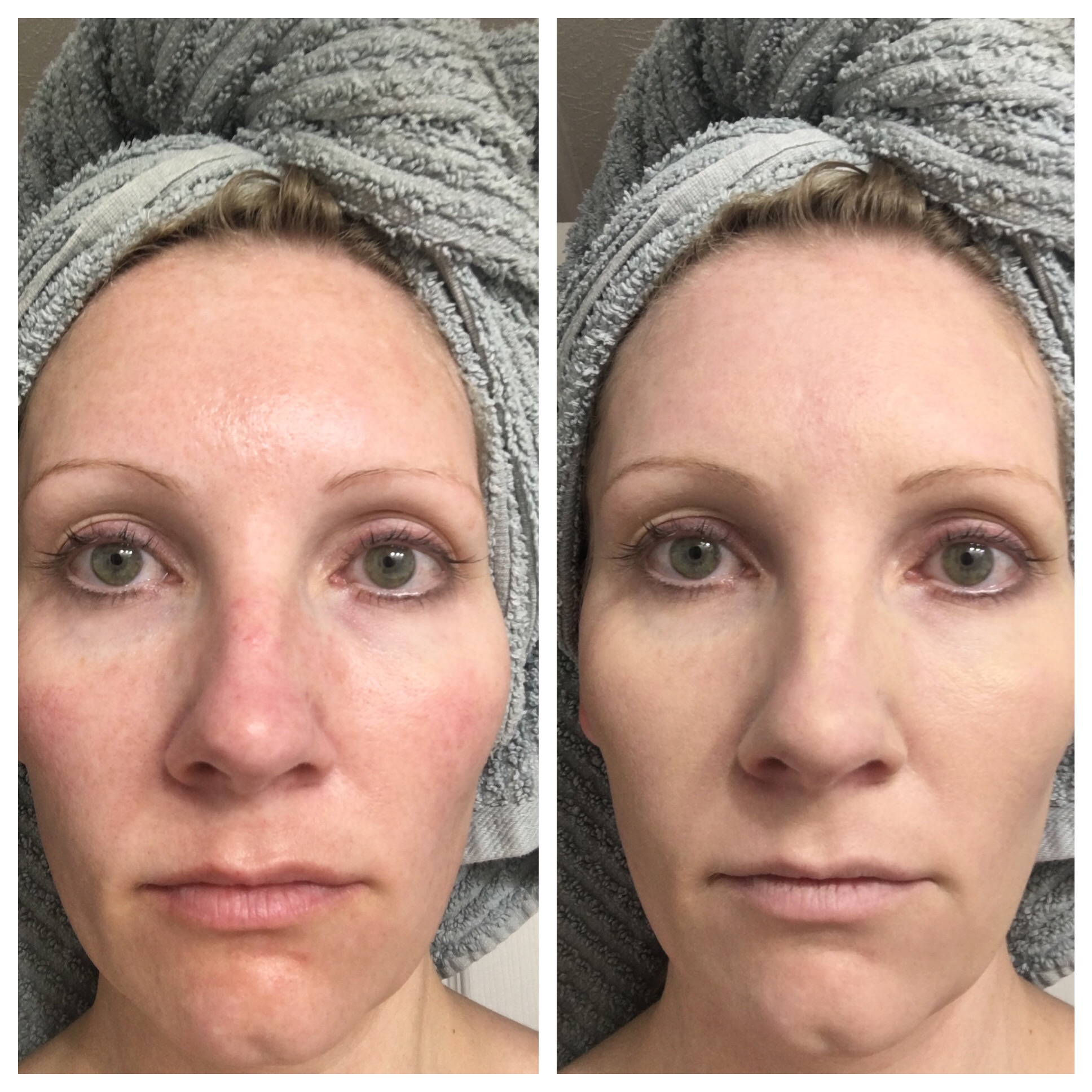 Woman showing facial difference with colorescience all calm