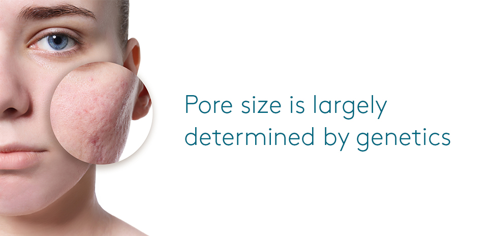 Pore size caused by genetics