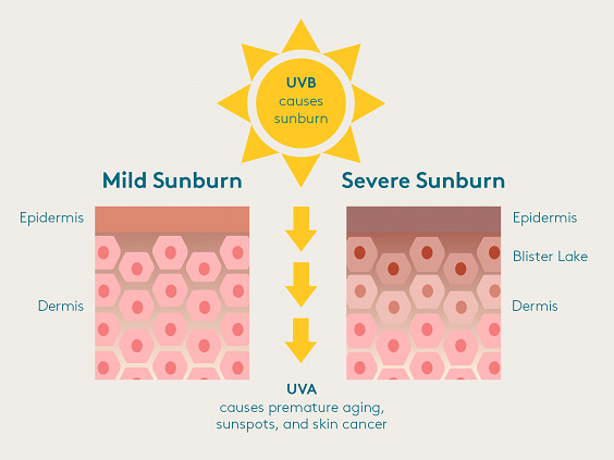 What Is A Sunburn Causes Science Of Sunburns Colorescience